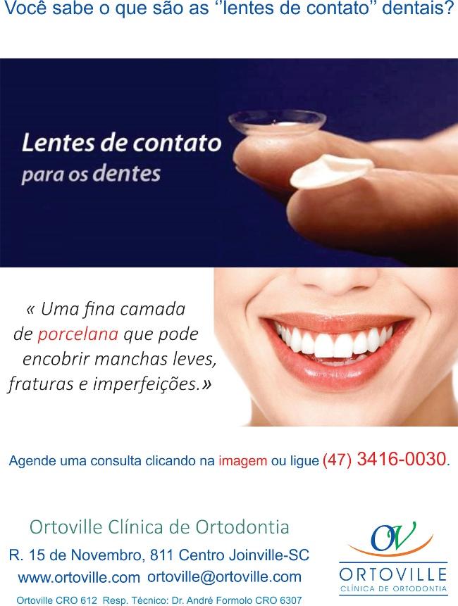 0785aeb5c7c94 Você sabe o que são lentes de contato dentais